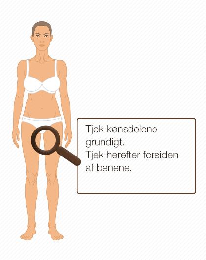 Modermærker som forandre sig kan indeholde modermærkekræft, det er derfor vigtigt at du tjekker din hud jævnligt.